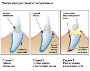 Зубы_2