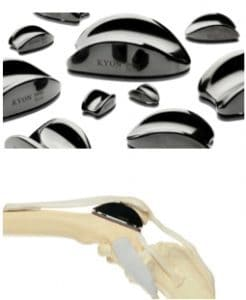 схематичная иллюстрация протезирования желоба коленной чашки