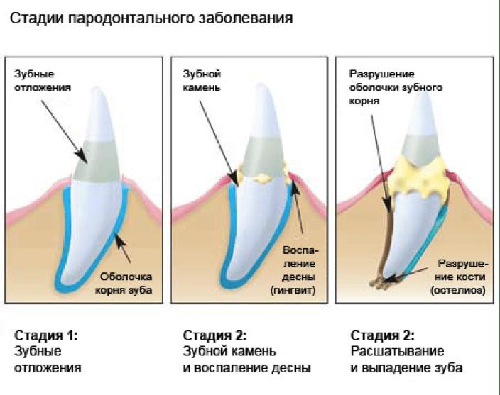 Как в домашних условиях снять чувствительность зубов